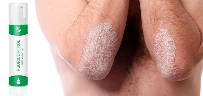 PSORICONTROL a pikkelysömör: hatékony gyógymód, az egészséges bőr!