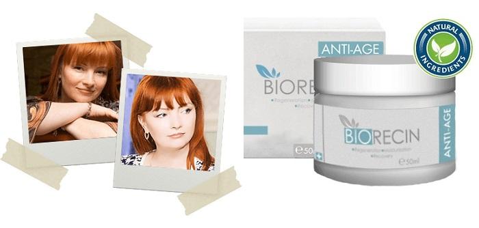 Biorecin a redők: jobb, mint a botox!