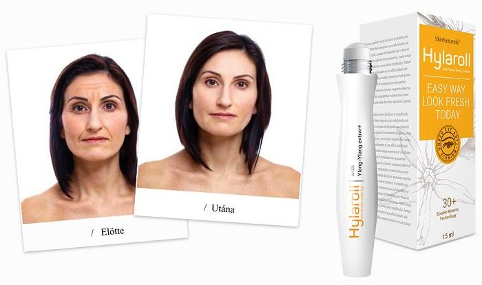 Hylaroll a redők: az anti-aging arcfiatalító gél 21 nap alatt kisimítja a mély ráncokat!
