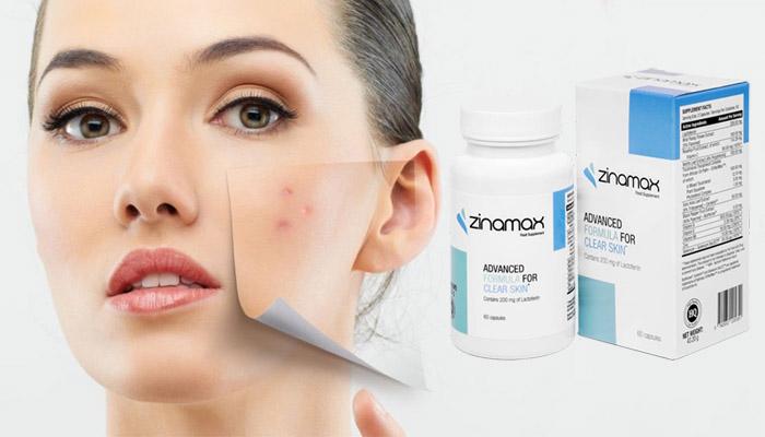 Zinamax pattanások ellen: szeresse meg újra az arcbőrét!